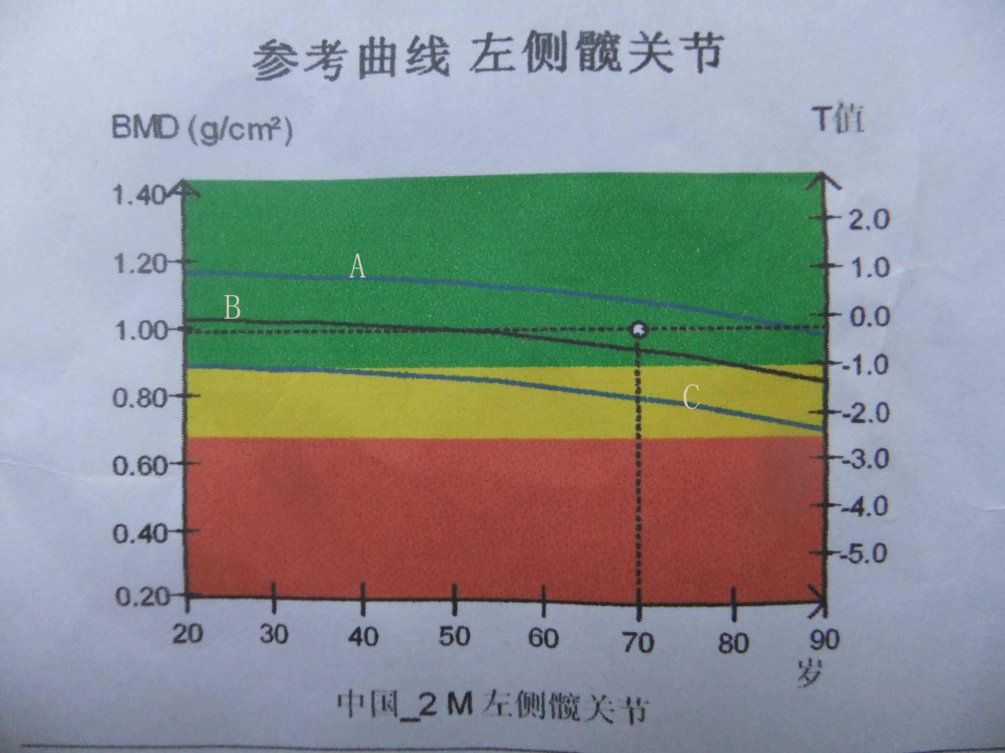 骨密度T值正常范围是多少